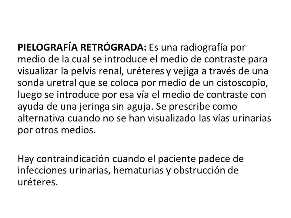 PIELOGRAFÍA RETRÓGRADA: Es una radiografía por medio de la cual se introduce el medio de contraste para visualizar la pelvis renal, uréteres y vejiga