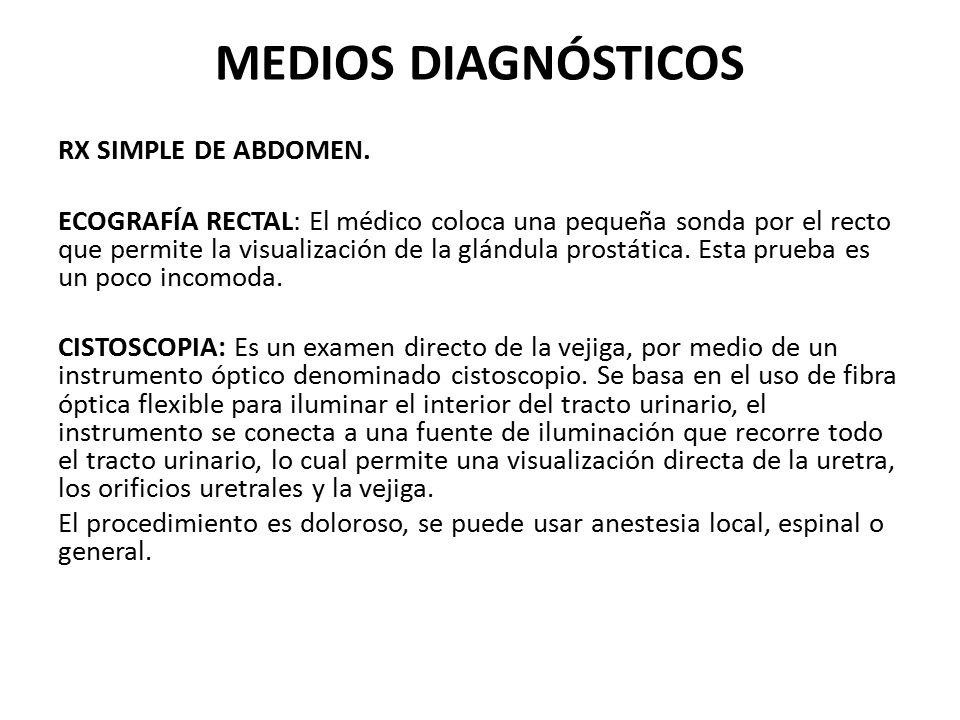 MEDIOS DIAGNÓSTICOS RX SIMPLE DE ABDOMEN. ECOGRAFÍA RECTAL: El médico coloca una pequeña sonda por el recto que permite la visualización de la glándul