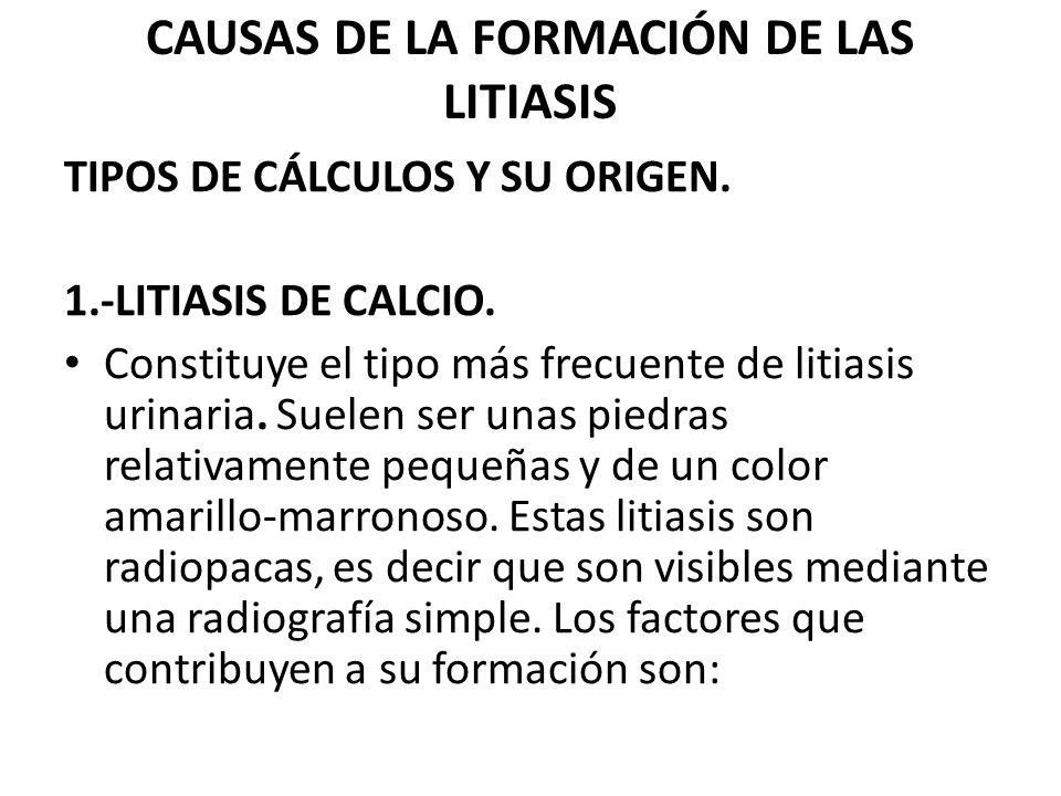 CAUSAS DE LA FORMACIÓN DE LAS LITIASIS TIPOS DE CÁLCULOS Y SU ORIGEN. 1.-LITIASIS DE CALCIO. Constituye el tipo más frecuente de litiasis urinaria. Su
