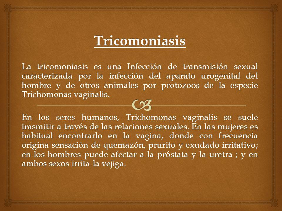Tricomoniasis La tricomoniasis es una Infección de transmisión sexual caracterizada por la infección del aparato urogenital del hombre y de otros anim