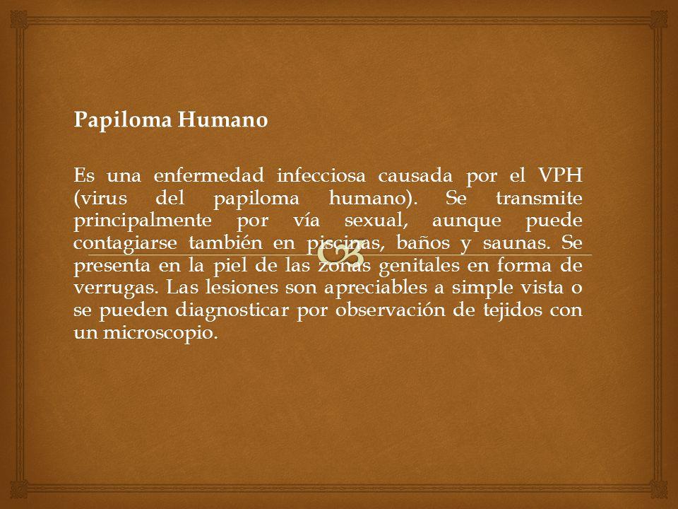 Síntomas Síntomas de Clamidia en hombres: Necesidad urgente de orinar.