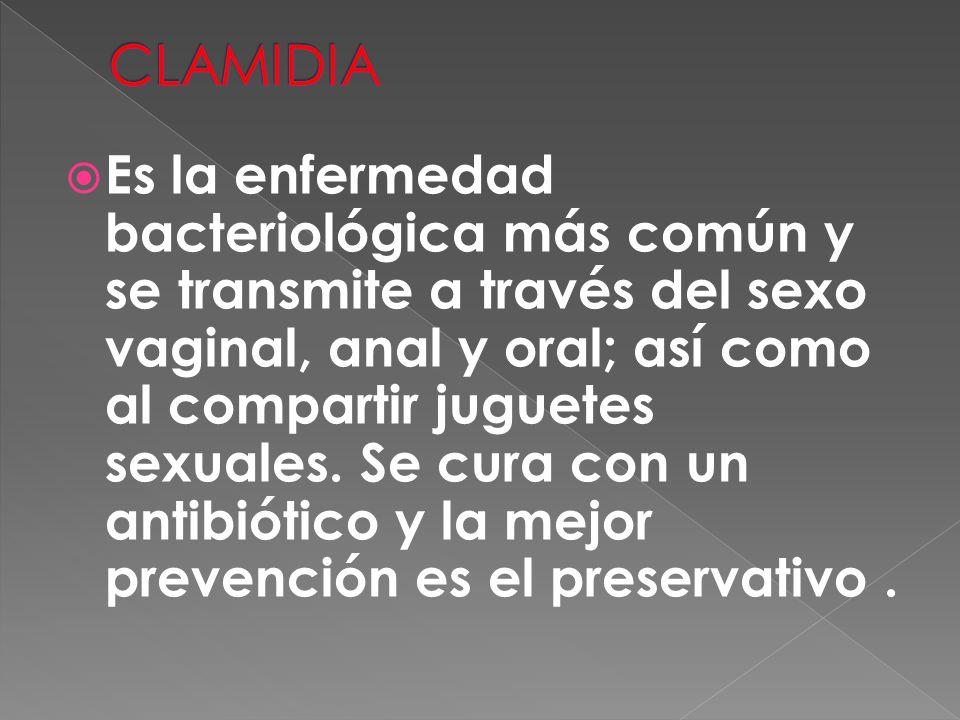  Es la enfermedad bacteriológica más común y se transmite a través del sexo vaginal, anal y oral; así como al compartir juguetes sexuales. Se cura co
