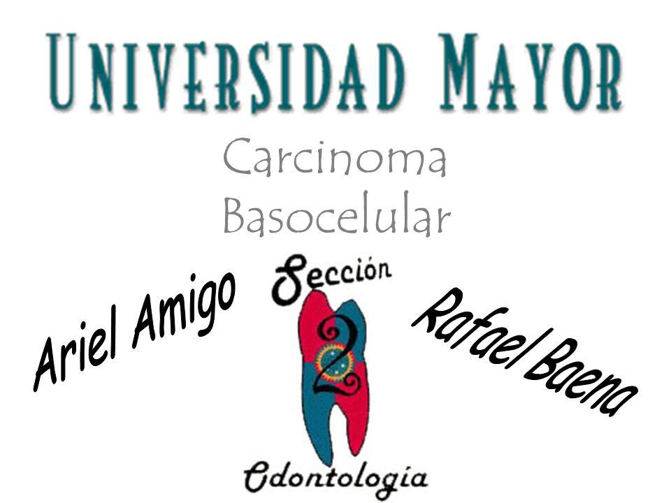 Definición El Carcinoma Basocelular es un tipo de tumor maligno que se observa en la piel, prolifera a partir de las células basales de la epidermis y los folículos pilosos.