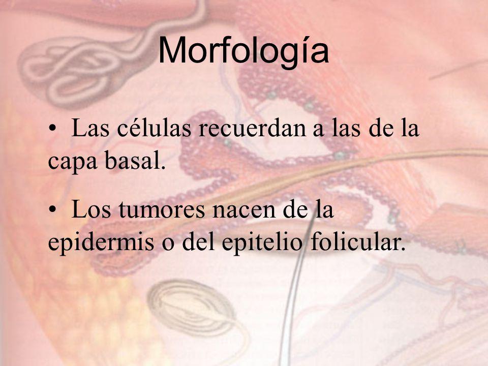 Morfología Las células recuerdan a las de la capa basal. Los tumores nacen de la epidermis o del epitelio folicular.