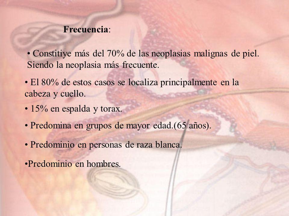 Frecuencia: Constitiye más del 70% de las neoplasias malignas de piel. Siendo la neoplasia más frecuente. El 80% de estos casos se localiza principalm