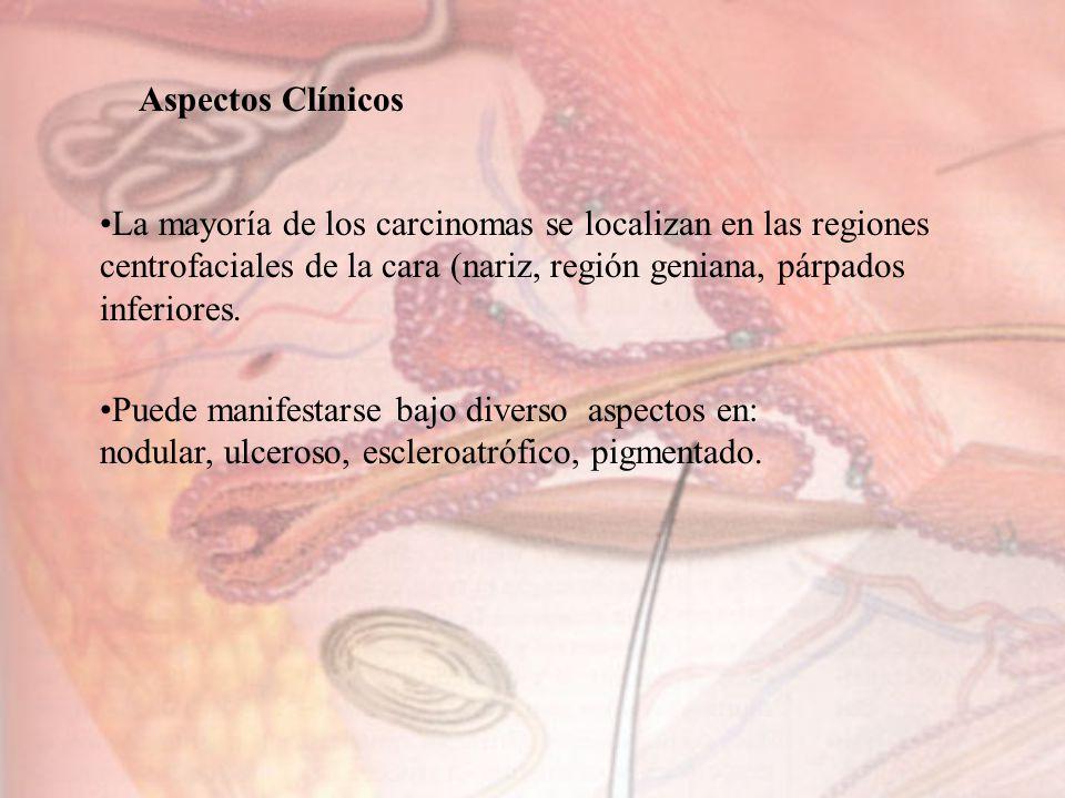 Aspectos Clínicos La mayoría de los carcinomas se localizan en las regiones centrofaciales de la cara (nariz, región geniana, párpados inferiores. Pue