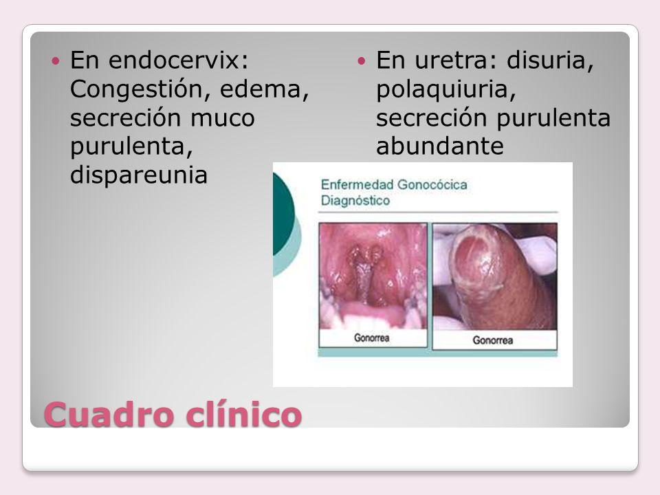 Cuadro clínico En endocervix: Congestión, edema, secreción muco purulenta, dispareunia En uretra: disuria, polaquiuria, secreción purulenta abundante