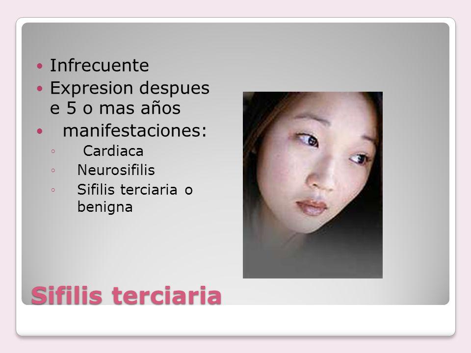 Sifilis terciaria Infrecuente Expresion despues e 5 o mas años manifestaciones: ◦Cardiaca ◦Neurosifilis ◦Sifilis terciaria o benigna