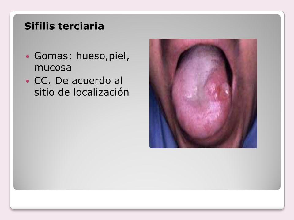 Sifilis terciaria Gomas: hueso,piel, mucosa CC. De acuerdo al sitio de localización