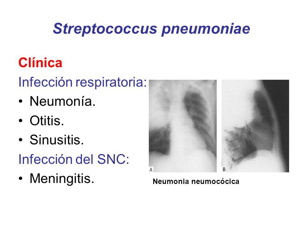 Streptococcus pneumoniae Clínica Infección respiratoria: Neumonía. Otitis. Sinusitis. Infección del SNC: Meningitis. Neumonia neumocócica