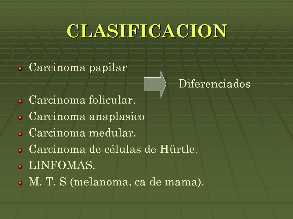 CLASIFICACION Carcinoma papilar Diferenciados Carcinoma folicular. Carcinoma anaplasico Carcinoma medular. Carcinoma de células de Hürtle. LINFOMAS. M