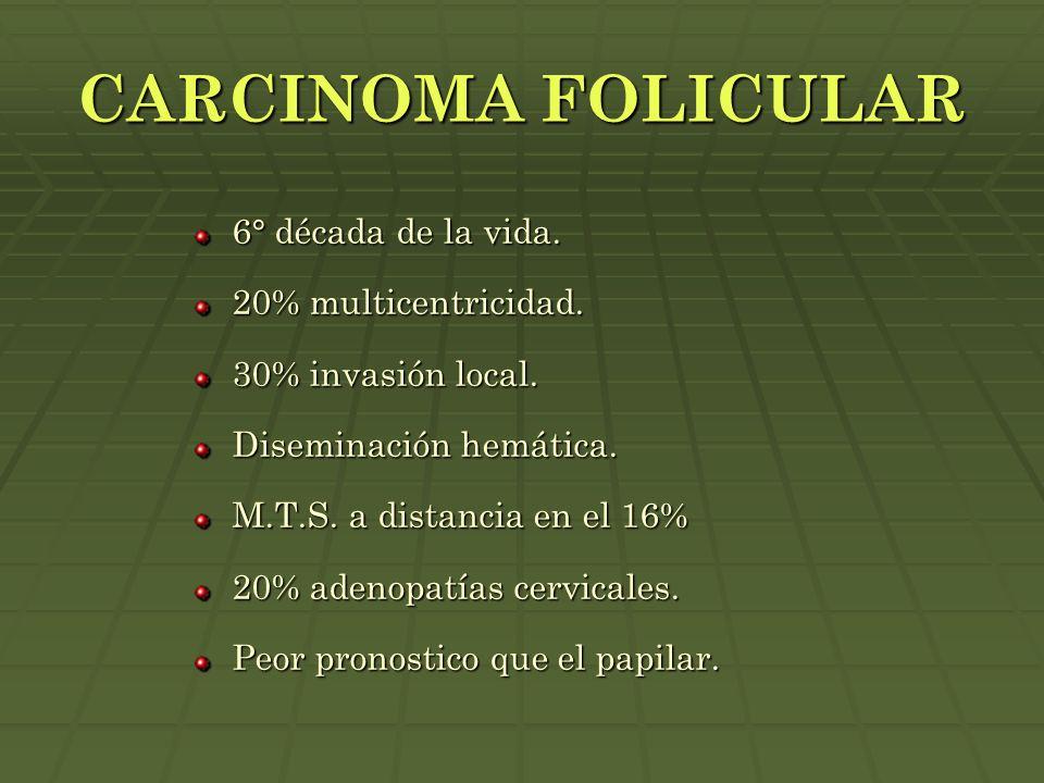 CARCINOMA FOLICULAR 6° década de la vida. 20% multicentricidad. 30% invasión local. Diseminación hemática. M.T.S. a distancia en el 16% 20% adenopatía