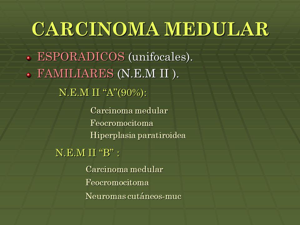 """CARCINOMA MEDULAR ESPORADICOS (unifocales). FAMILIARES (N.E.M II ). N.E.M II """"A""""(90%): N.E.M II """"A""""(90%): Carcinoma medular Carcinoma medular Feocromo"""