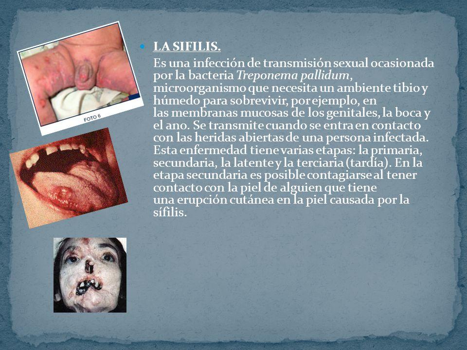 PAPILOMA HUMANO.Es una enfermedad infecciosa causada por el VPH (virus del papiloma humano).