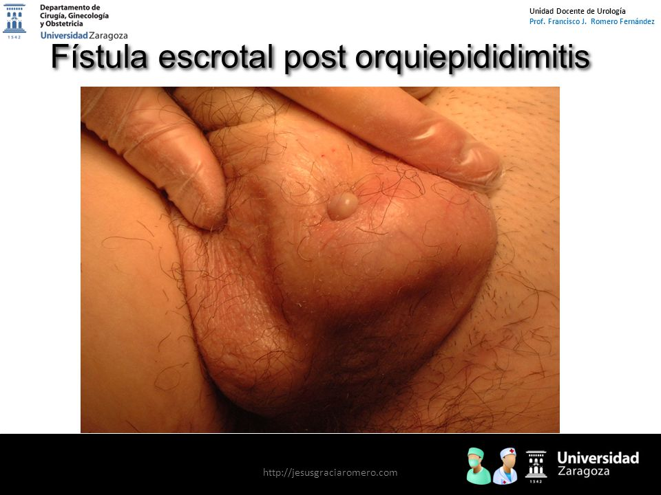 Unidad Docente de Urología Prof. Francisco J.
