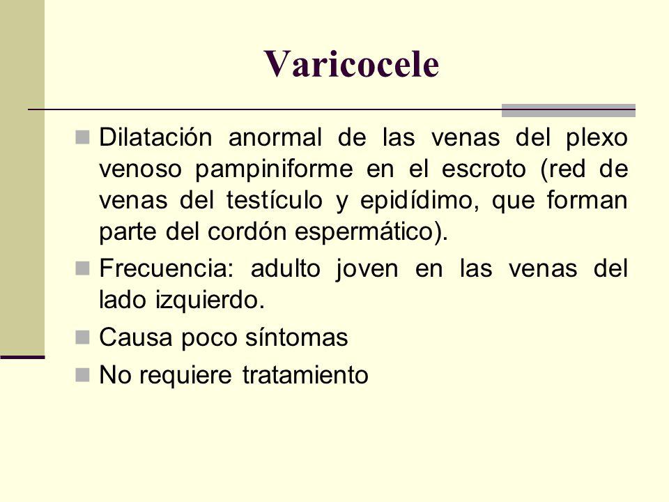 Varicocele Dilatación anormal de las venas del plexo venoso pampiniforme en el escroto (red de venas del testículo y epidídimo, que forman parte del cordón espermático).