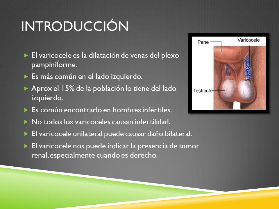 INTRODUCCIÓN  El varicocele es la dilatación de venas del plexo pampiniforme.
