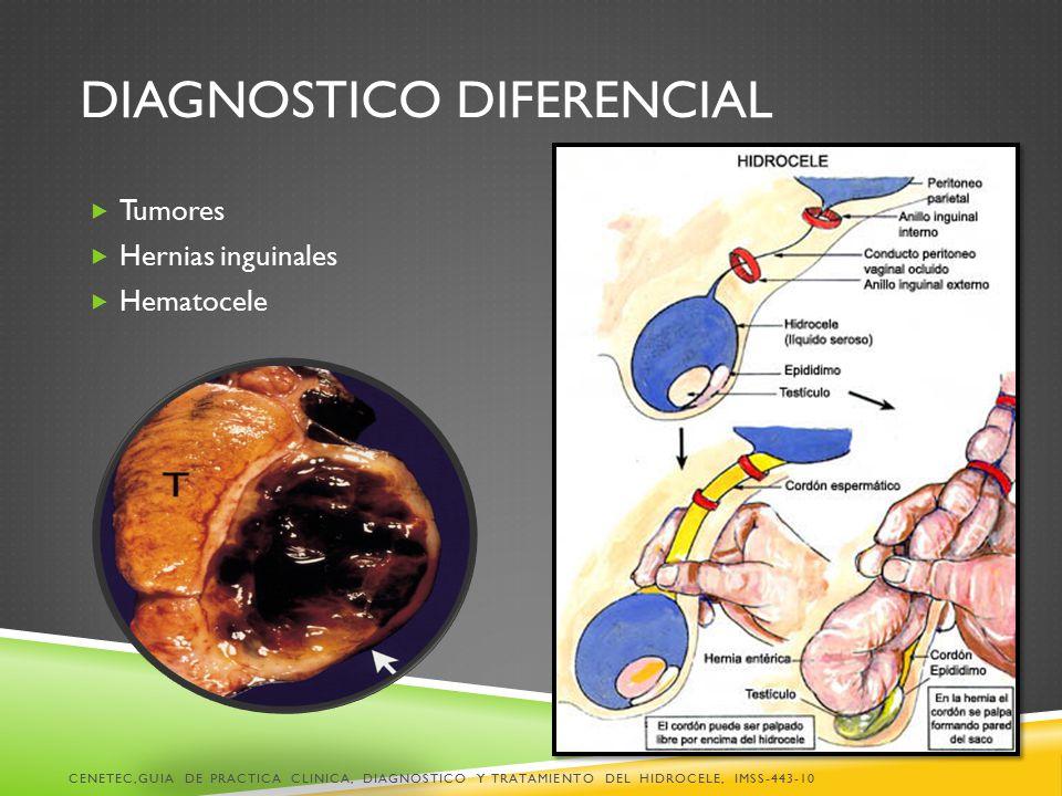 DIAGNOSTICO DIFERENCIAL  Tumores  Hernias inguinales  Hematocele CENETEC,GUIA DE PRACTICA CLINICA, DIAGNOSTICO Y TRATAMIENTO DEL HIDROCELE, IMSS-443-10
