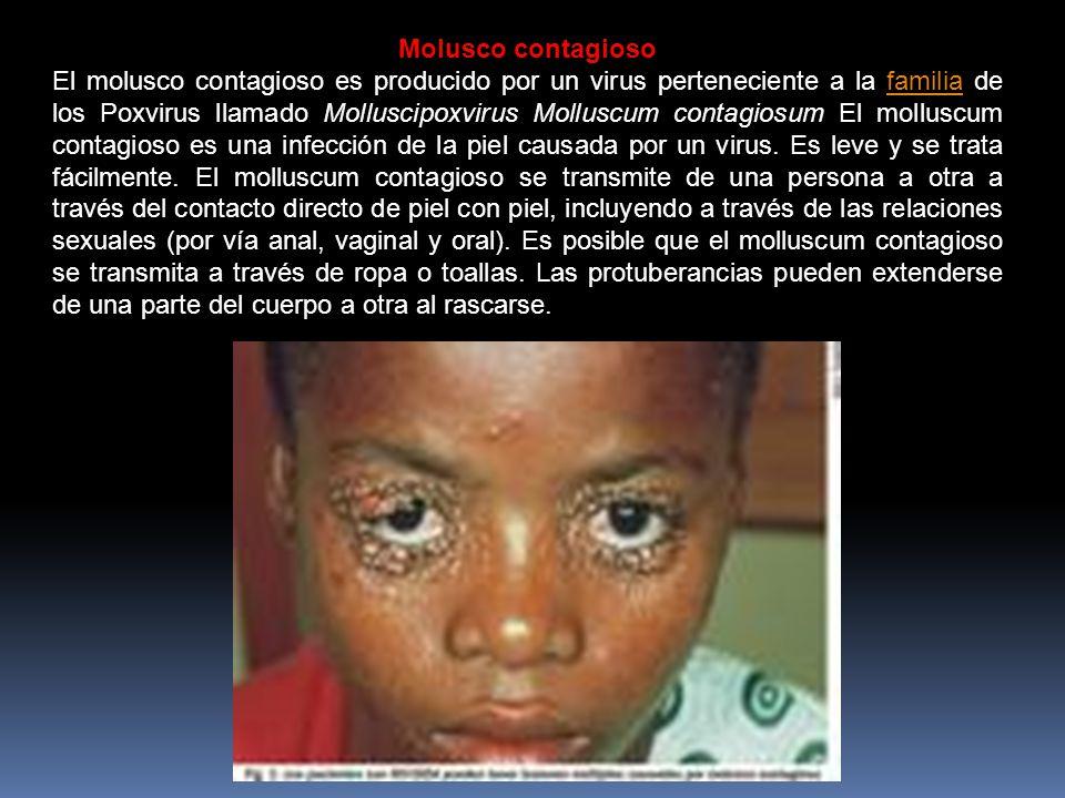 Molusco contagioso El molusco contagioso es producido por un virus perteneciente a la familia de los Poxvirus llamado Molluscipoxvirus Molluscum contagiosum El molluscum contagioso es una infección de la piel causada por un virus.