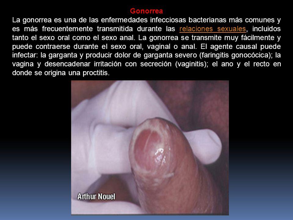 Gonorrea La gonorrea es una de las enfermedades infecciosas bacterianas más comunes y es más frecuentemente transmitida durante las relaciones sexuales, incluidos tanto el sexo oral como el sexo anal.