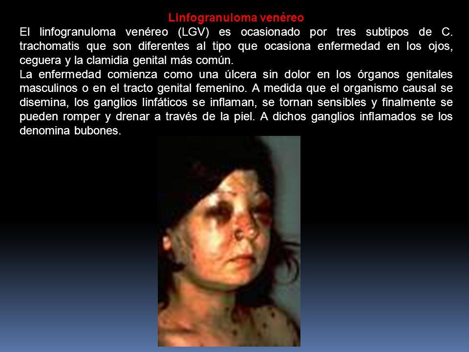 Linfogranuloma venéreo El linfogranuloma venéreo (LGV) es ocasionado por tres subtipos de C.