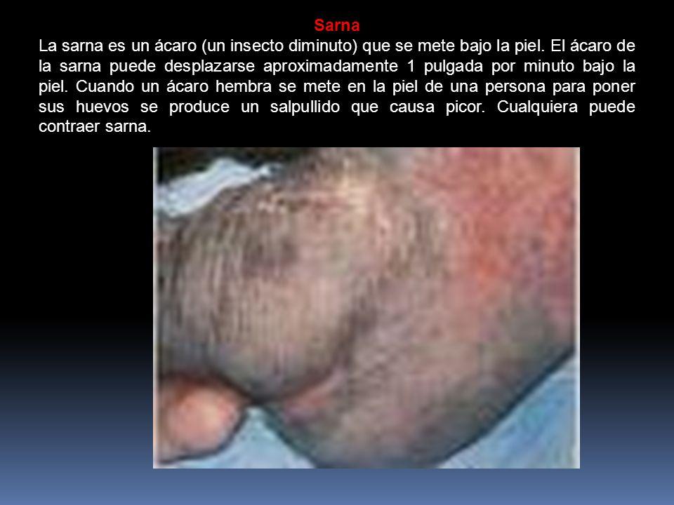 Sarna La sarna es un ácaro (un insecto diminuto) que se mete bajo la piel.