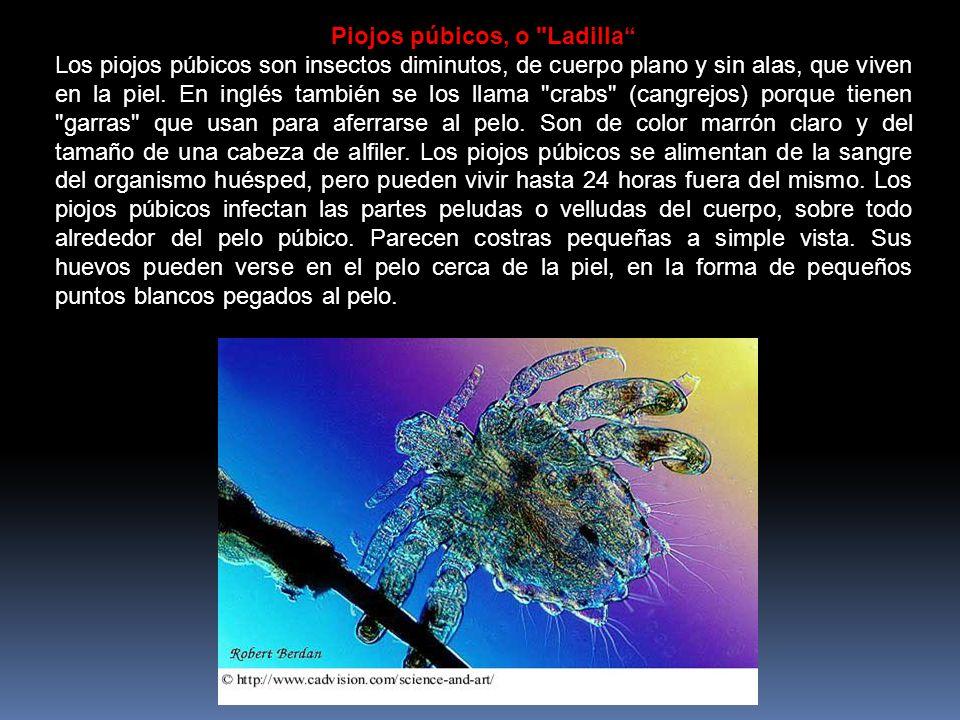 Piojos púbicos, o Ladilla Los piojos púbicos son insectos diminutos, de cuerpo plano y sin alas, que viven en la piel.