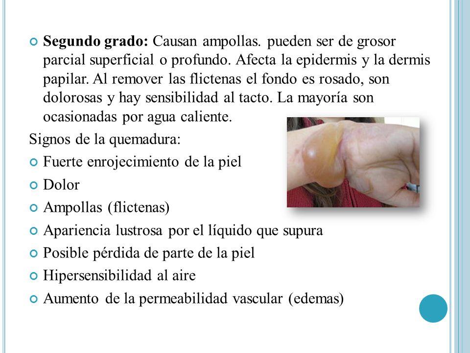 Segundo grado: Causan ampollas. pueden ser de grosor parcial superficial o profundo. Afecta la epidermis y la dermis papilar. Al remover las flictenas