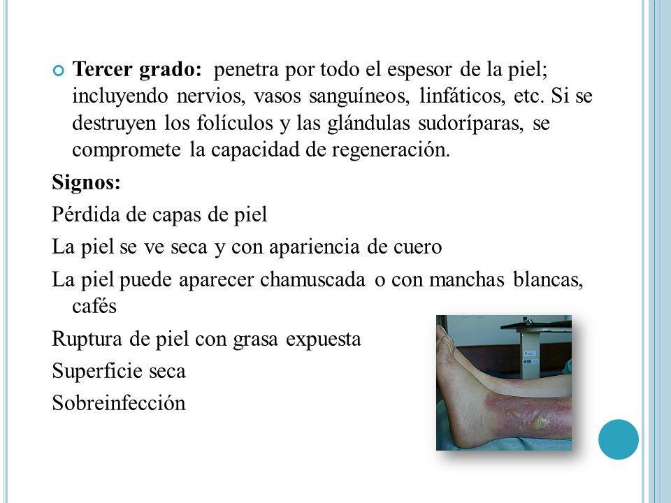 Tercer grado: penetra por todo el espesor de la piel; incluyendo nervios, vasos sanguíneos, linfáticos, etc.