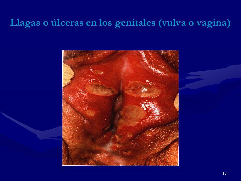 15 Llagas o úlceras en los genitales (vulva o vagina)