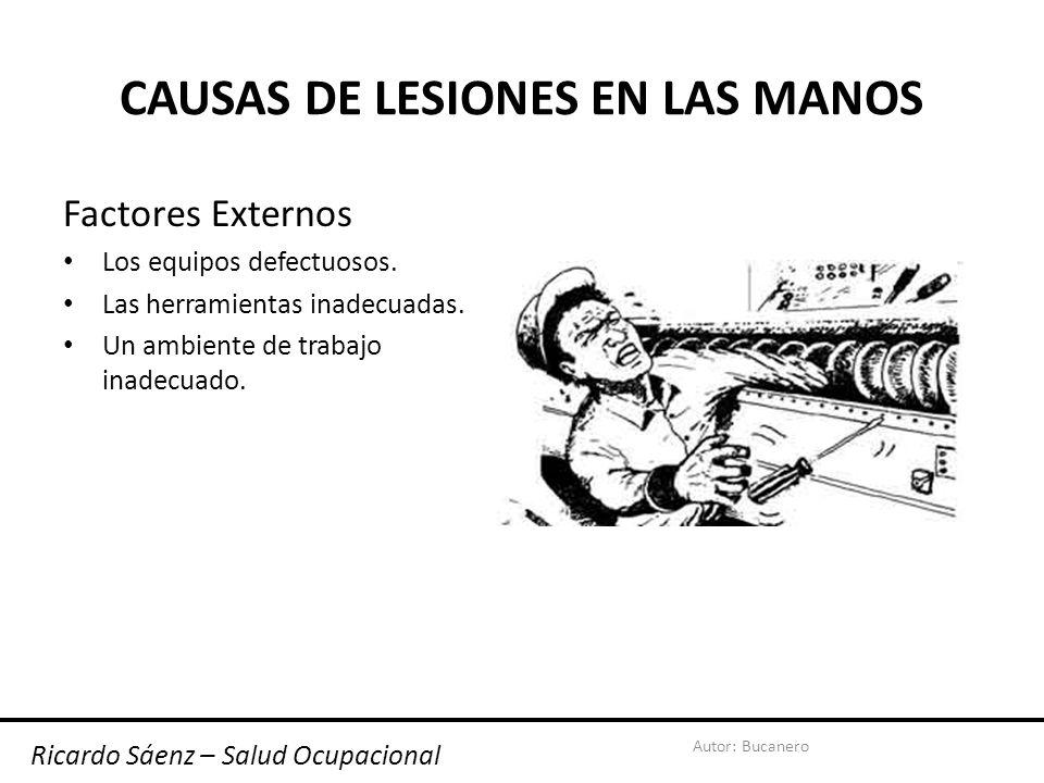 Autor: Bucanero CAUSAS DE LESIONES EN LAS MANOS Factores Externos Los equipos defectuosos.