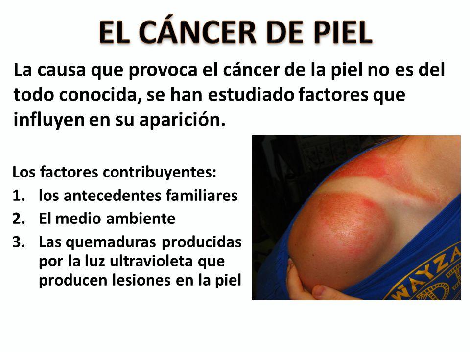 La causa que provoca el cáncer de la piel no es del todo conocida, se han estudiado factores que influyen en su aparición. Los factores contribuyentes