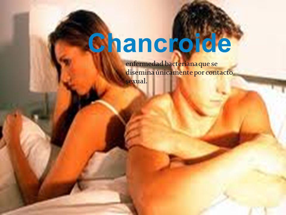 Chancroide enfermedad bacteriana que se disemina únicamente por contacto sexual.