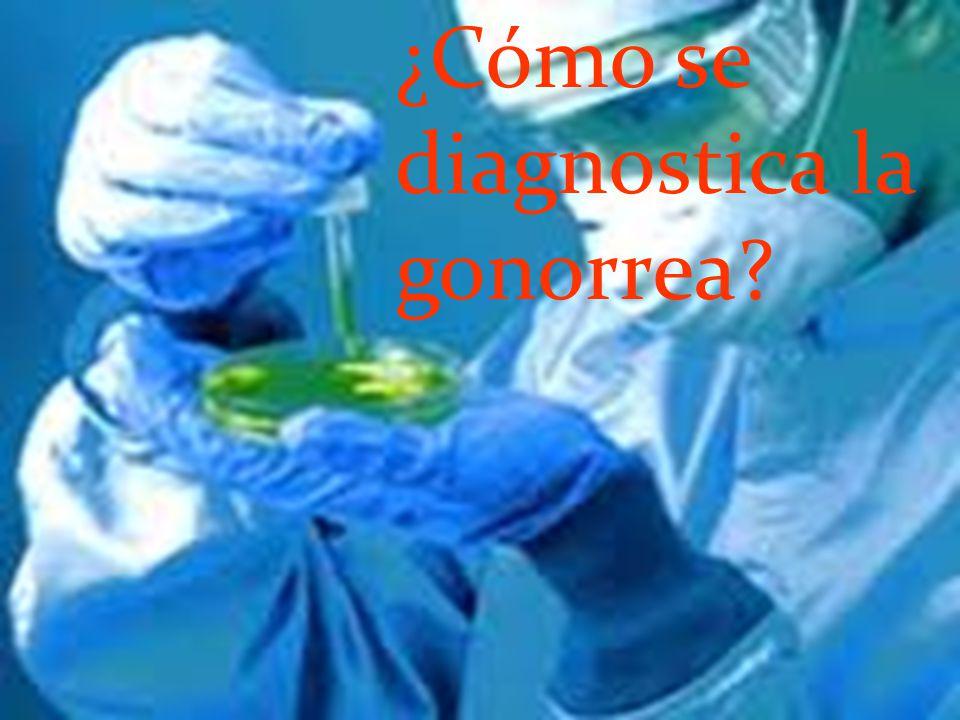 ¿Cómo se diagnostica la gonorrea?