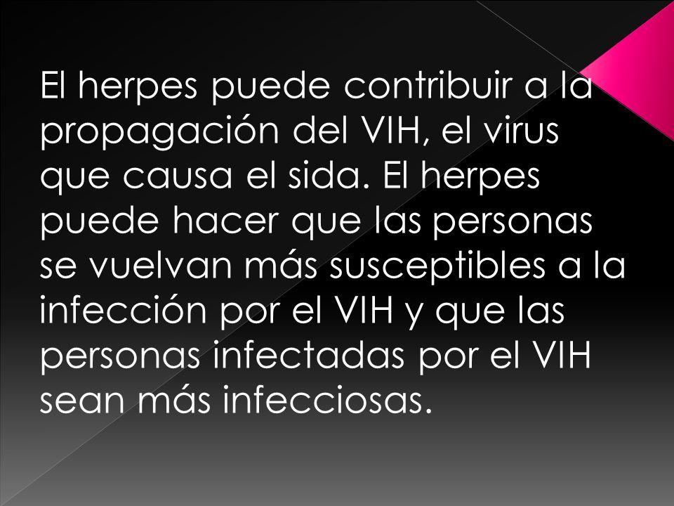 El herpes puede contribuir a la propagación del VIH, el virus que causa el sida.