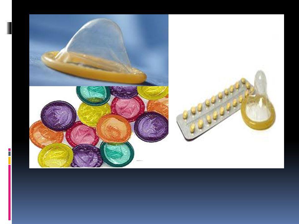 Algunas infecciones y enfermedades de transmisión sexual  Gonorrea  La gonorrea es una de las infecciones de transmisión sexual (ITS) más frecuentes.