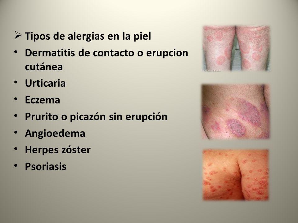  Tipos de alergias en la piel Dermatitis de contacto o erupcion cutánea Urticaria Eczema Prurito o picazón sin erupción Angioedema Herpes zóster Psoriasis