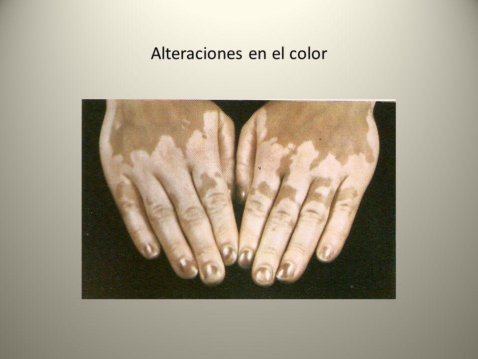Alteraciones en el color
