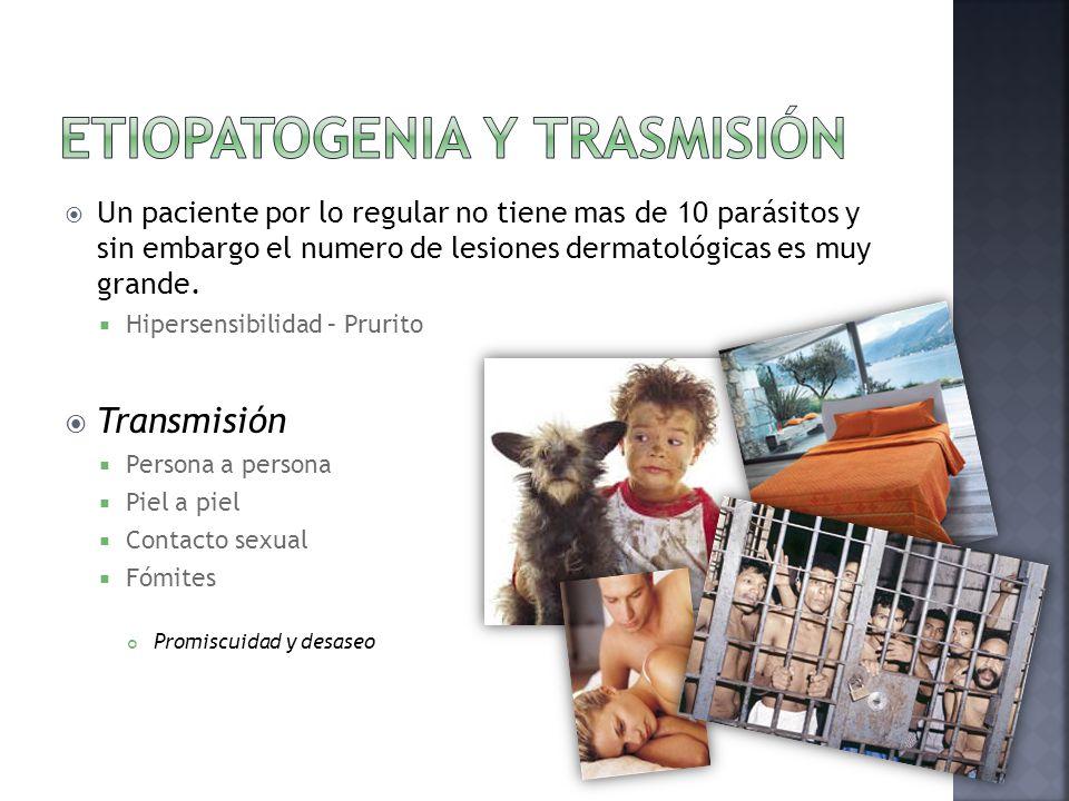  Un paciente por lo regular no tiene mas de 10 parásitos y sin embargo el numero de lesiones dermatológicas es muy grande.  Hipersensibilidad – Prur