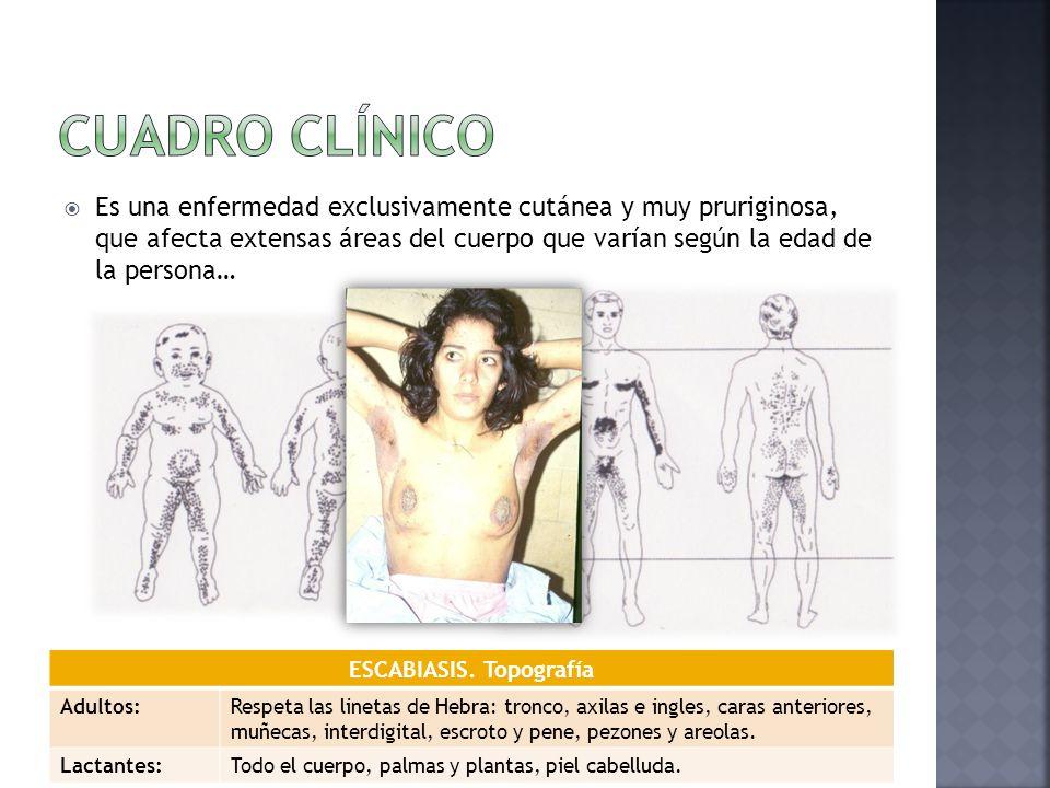  Es una enfermedad exclusivamente cutánea y muy pruriginosa, que afecta extensas áreas del cuerpo que varían según la edad de la persona… ESCABIASIS.