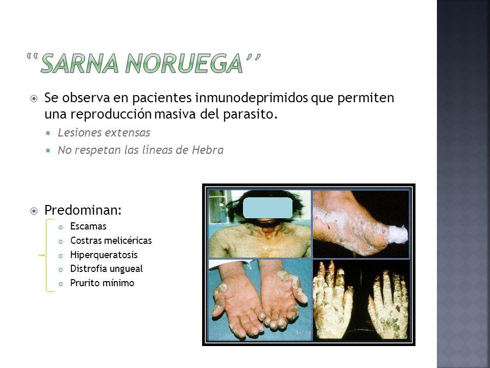  Se observa en pacientes inmunodeprimidos que permiten una reproducción masiva del parasito.  Lesiones extensas  No respetan las líneas de Hebra 