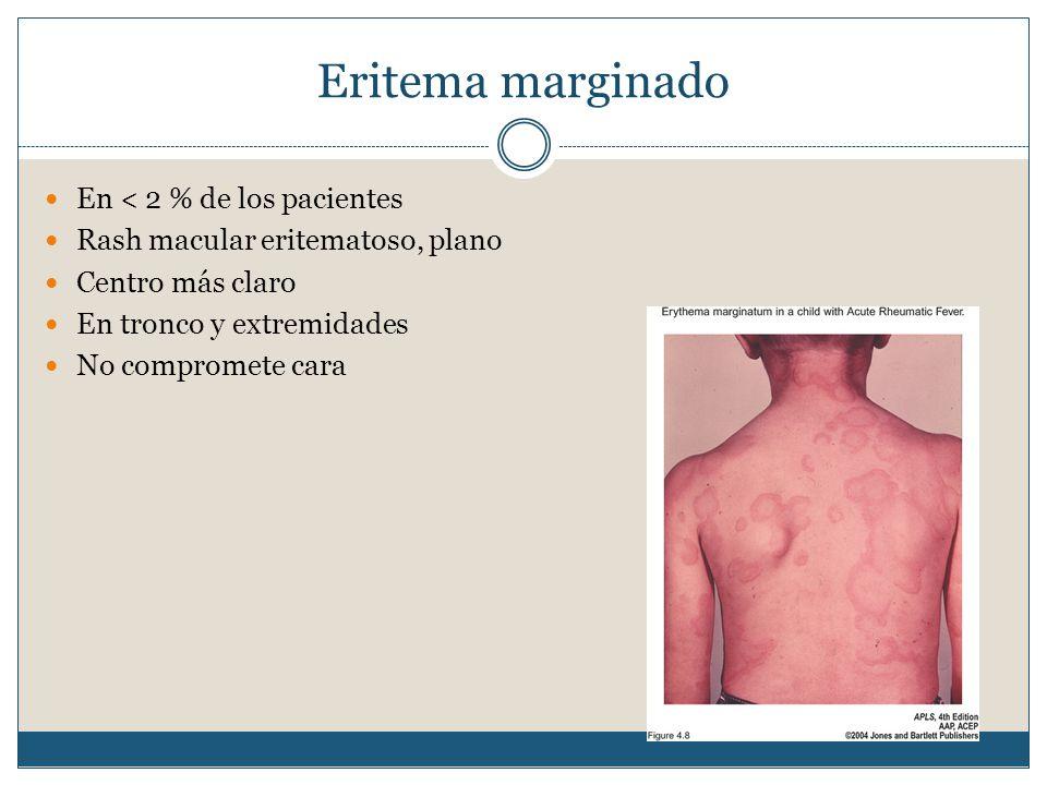 Eritema marginado En < 2 % de los pacientes Rash macular eritematoso, plano Centro más claro En tronco y extremidades No compromete cara