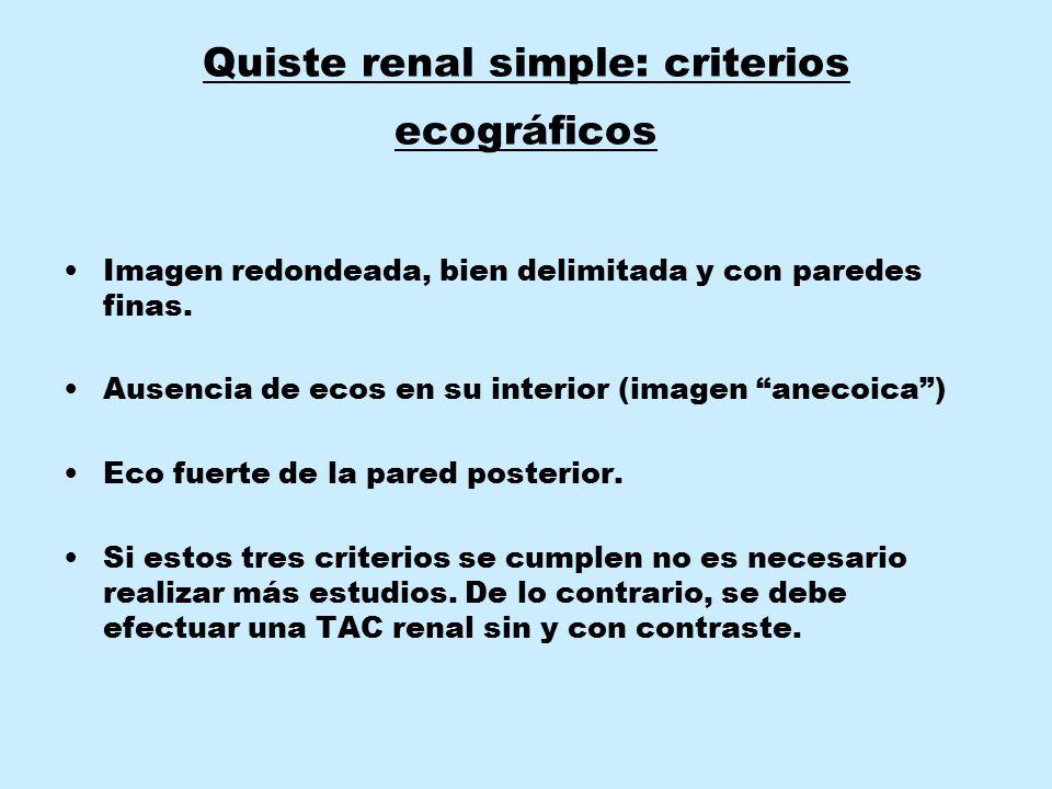 """Quiste renal simple: criterios ecográficos Imagen redondeada, bien delimitada y con paredes finas. Ausencia de ecos en su interior (imagen """"anecoica"""")"""