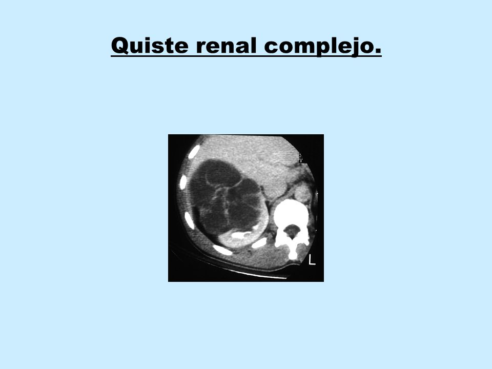 Quiste renal complejo.