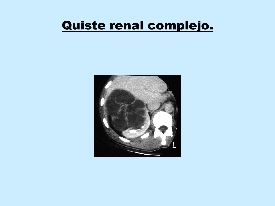 Clasificación.CA renal localizado: estadios IA, IB, II y III.