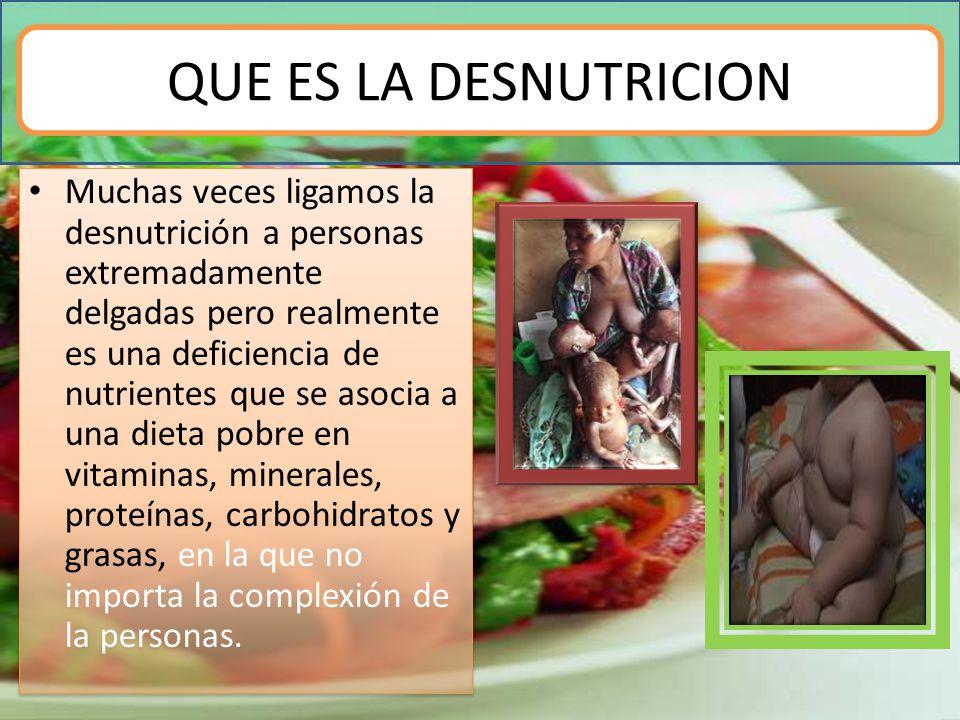 QUE ES LA DESNUTRICION Muchas veces ligamos la desnutrición a personas extremadamente delgadas pero realmente es una deficiencia de nutrientes que se