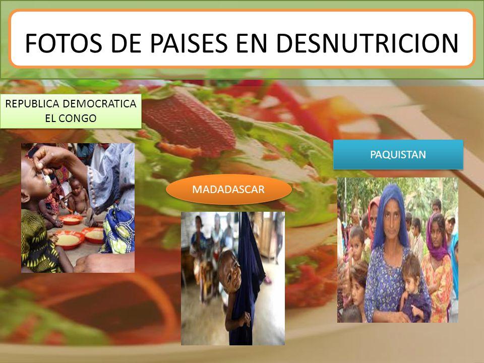 FOTOS DE PAISES EN DESNUTRICION REPUBLICA DEMOCRATICA EL CONGO MADADASCAR PAQUISTAN