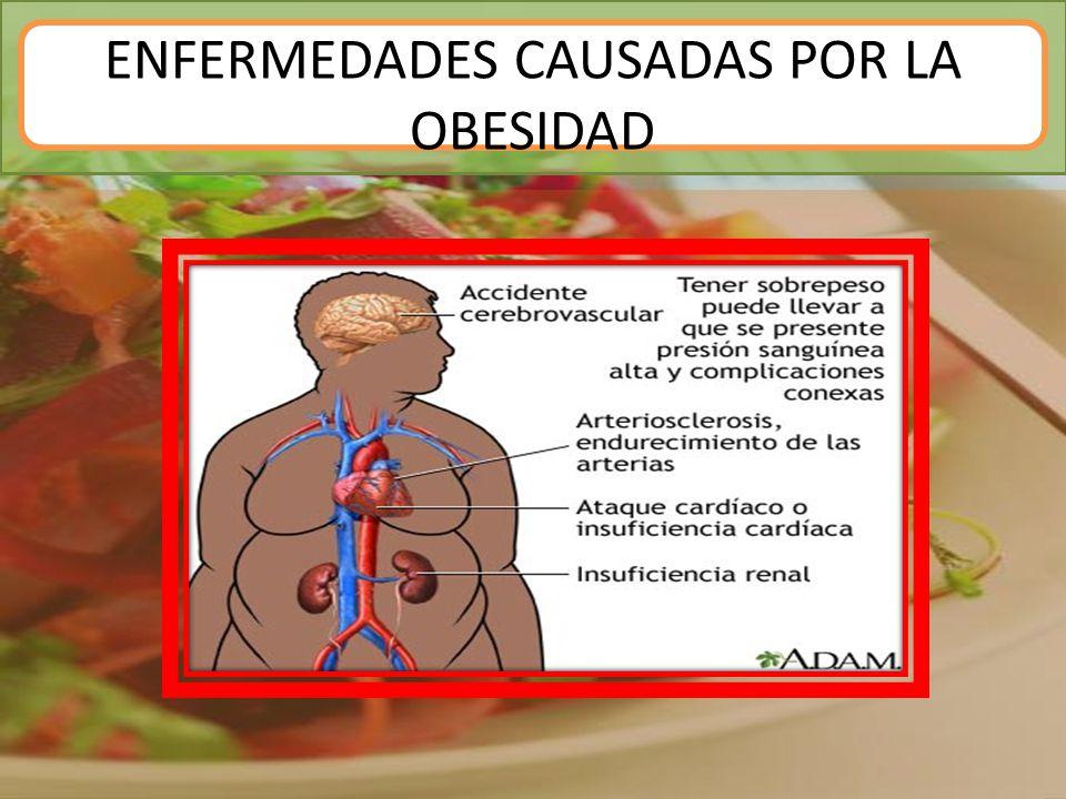 ENFERMEDADES CAUSADAS POR LA OBESIDAD