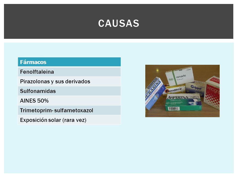 CAUSAS Fármacos Fenolftaleina Pirazolonas y sus derivados Sulfonamidas AINES 50% Trimetoprim- sulfametoxazol Exposición solar (rara vez)