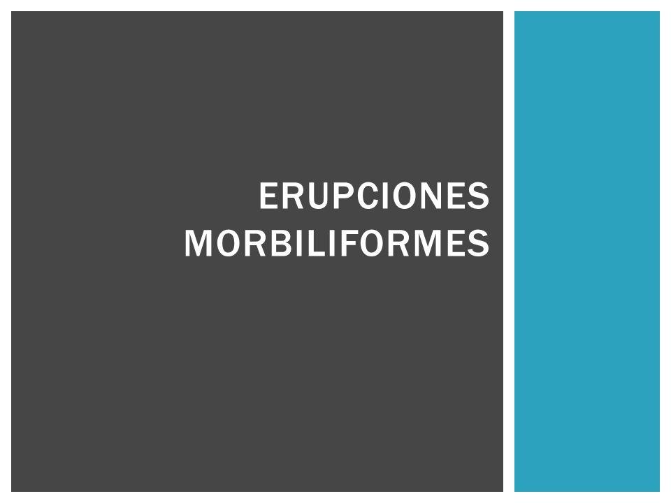 ERUPCIONES MORBILIFORMES